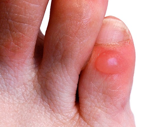 red spots on foot #10