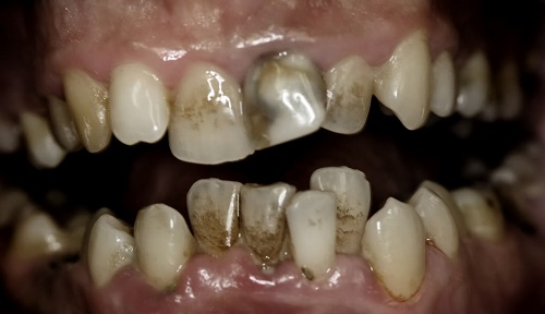rotten teeth pictures and treatments | new health advisor, Human Body