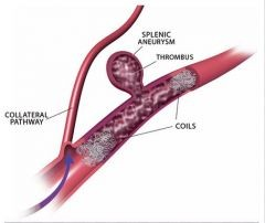 Splenic artery aneurysm causes diagnosis and treatments for Aneurysm of the spleen