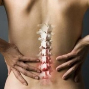 osteoarthritis of the spine