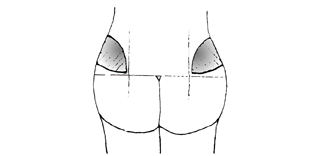 Progesterone shots - BabyCenter
