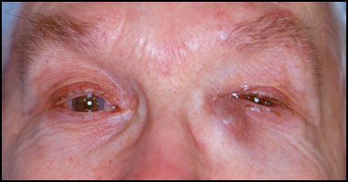 Causes And Treatments Of Blocked Tear Duct In Adult New