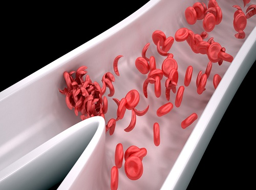 sickle red blood cell