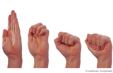 8 Best Exercises to Relieve Your Trigger Finger | New ...