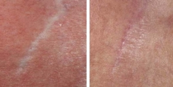 Derma Roller Before And After Do They Really Work New