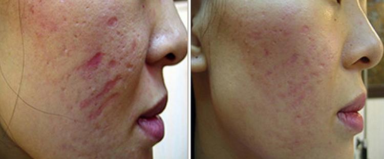 roller skin treatment