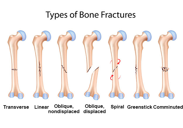 different types of bone fractures Types of fractures and their pattern vary according to the site of the injury for a  physician classification of fractures is of utmost importance.