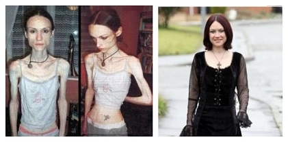 6 cases of anorexia before and after with pictures new health 2 lauren bailey ccuart Choice Image