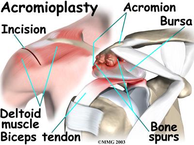 Bone Spurs In Shoulder New Health Advisor