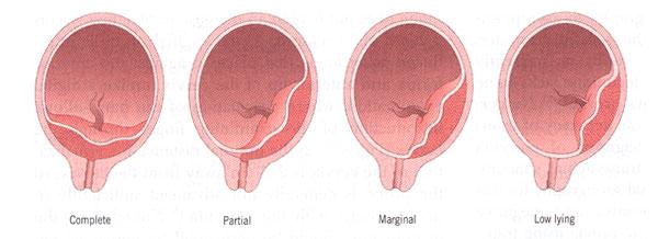 Bleeding in Pregnancy: Placenta Previa | New Health Advisor