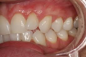 Why Do I Have White Colored Gums Around the Teeth? | New Health Advisor
