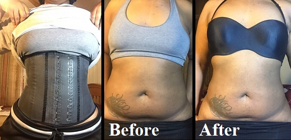 Can You Lose Belly Fat After C Section What Are The Best