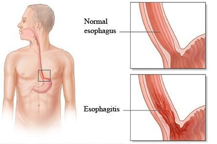 Burning Oesophagus After Eating Food