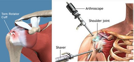 What Is Rotator Cuff Surgery Recovery Time New Health