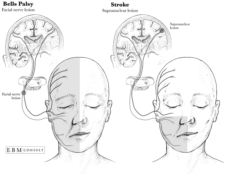 bell's palsy vs. stroke: how to distinguish them | new health advisor, Cephalic Vein