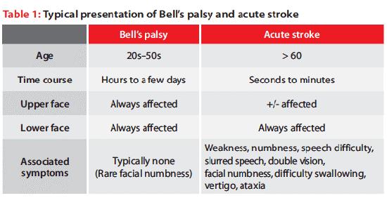 bell's palsy vs. stroke: how to distinguish them | new health advisor, Cephalic Vein