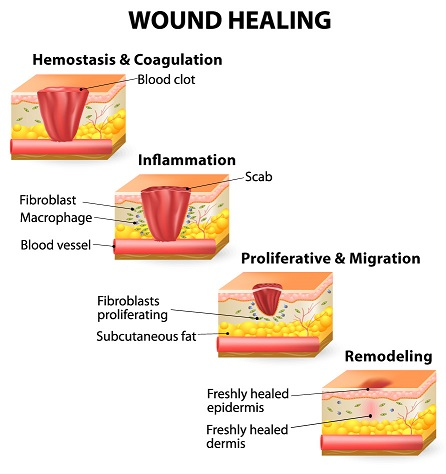 Know the 4 Stages of Wound Healing Process | New Health ...