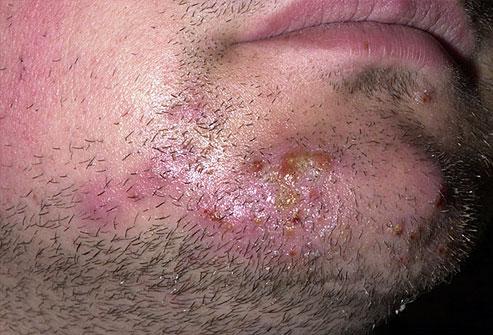 Folliculitis Causes, Symptoms, Treatments, Prevention