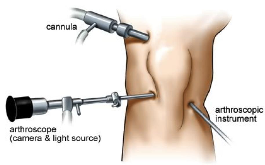Knee Arthroscopy Recovery Time | New Health Advisor