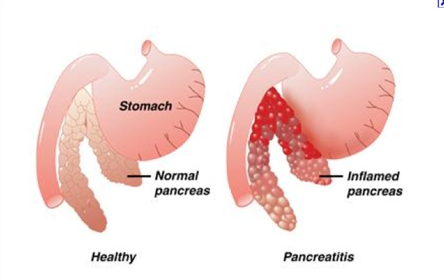 symptoms of pancreatitis new health advisor diagram of stomach and heart diagram of a fetal heart