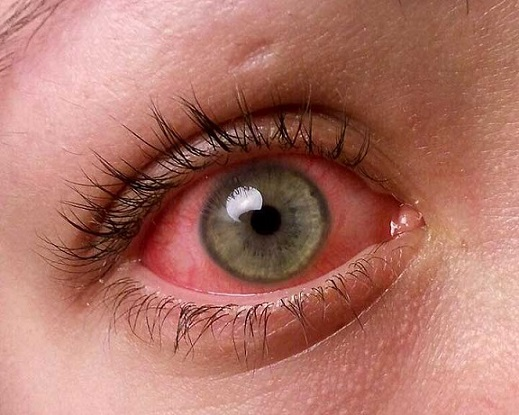 11 Most Common Childhood Illnesses to Watch Out For | New ...