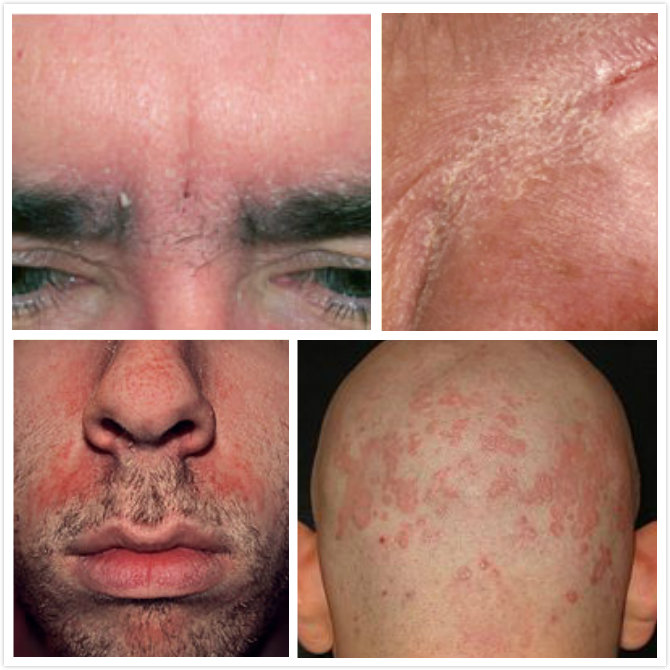 Seborrheic Dermatitis: An Overview