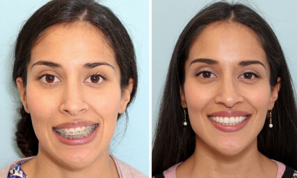 Effects of Jaw Surgery Before and After | New Health Advisor