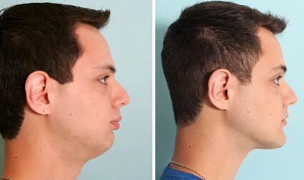 Effects Of Jaw Surgery Before And After New Health Advisor