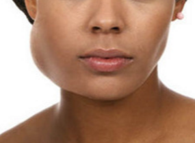 Parotid Gland Swelling Causes and Treatments | New Health Advisor