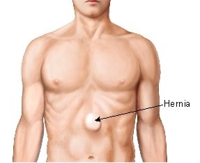 what does a hernia look like? | new health advisor, Cephalic Vein