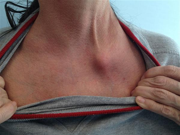 Sternoclavicular Joint Swelling Causes And Treatments