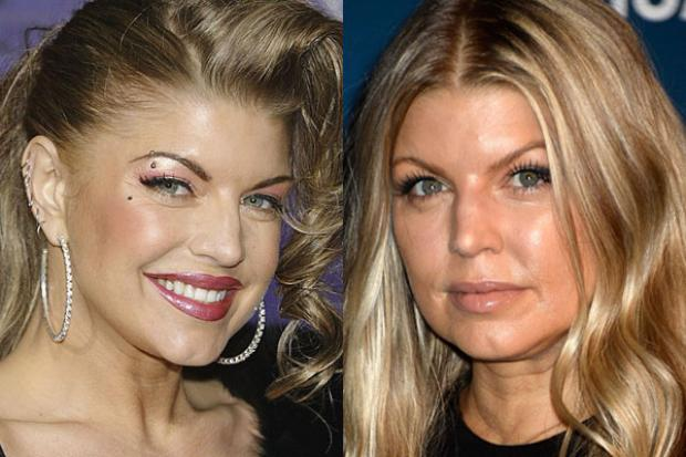 15 Famous Drug Addicts Before And After Pictures New