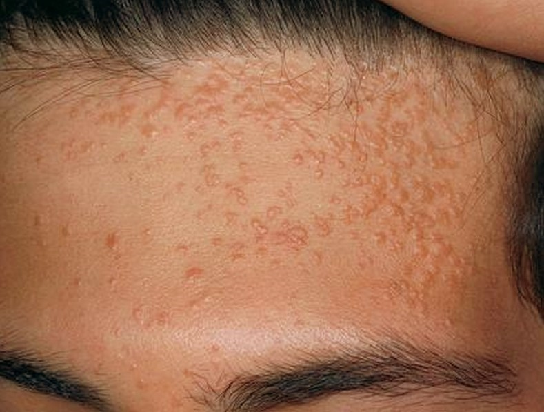 Moles Appearing Everywhere Causes And Treatments New