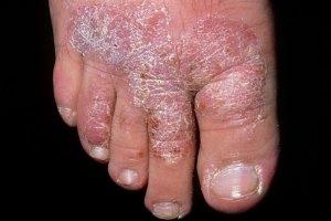 sore skin desease