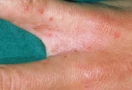 Causes and Treatment of Small Red Bumps on Hands | New ...