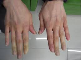 Causes and Treatment for Poor Circulation in Fingers | New Health ...