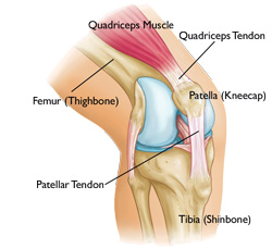 Quads Ripped from Bone Causes and Treatments New Health