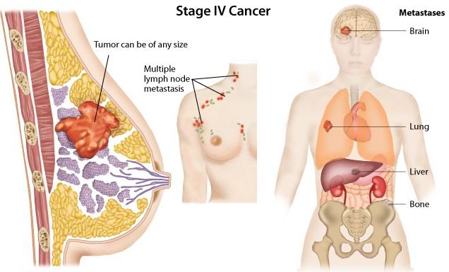 bones breast cancer spread