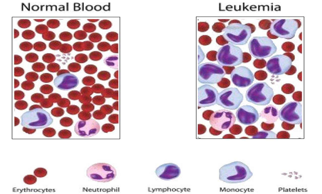 How Does Leukemia Affect The Body New Health Advisor
