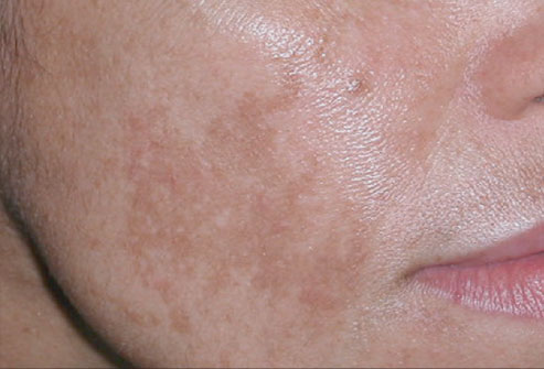 Great What Causes Light Brown Spots On Skin? Great Pictures