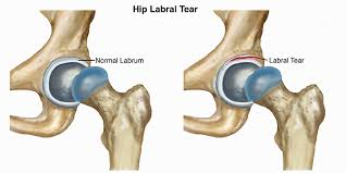 Causes And Effective Treatments For Acetabular Labral Tear