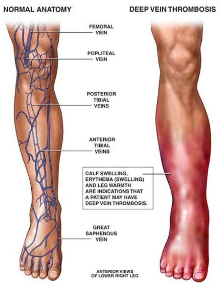 Signs and symptoms of dvt in foot