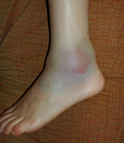 swollen ankle after running: causes and home remedies | new health, Skeleton
