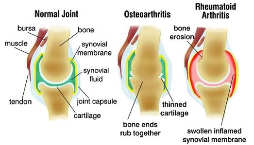 Osteoarthritis vs. Rheumatoid Arthritis: Similarities and ...