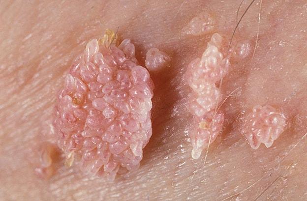 Kết quả hình ảnh cho genital warts