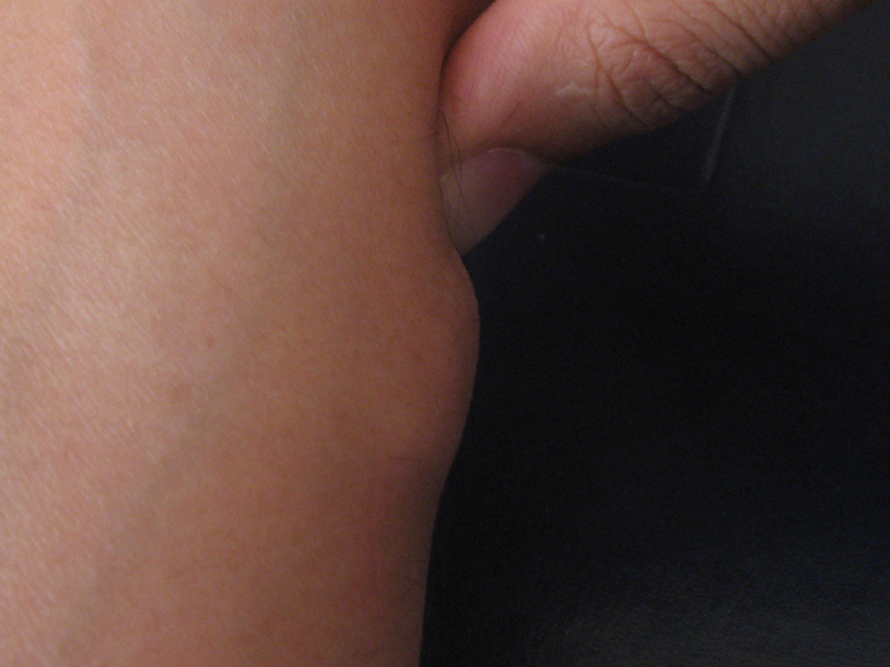 What are the possible causes of a lump in the hand?