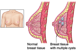 just tissue or in breast Lump