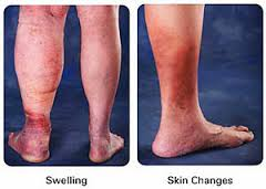 8 Reasons for Your Lower Leg Swelling and Discoloration ...