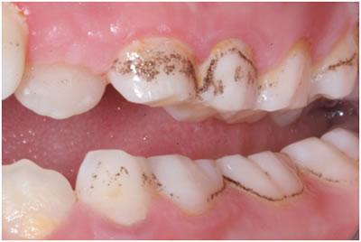 Why Do I Have Black Stains on Teeth?   New Health Advisor