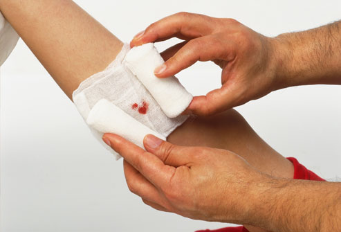 Causes And Treatments For Wounds That Won T Heal New